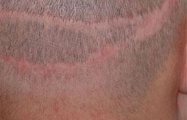 dermographie cicatrices