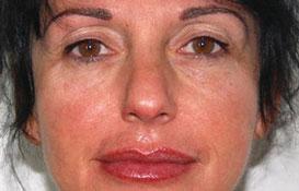 Rajeunissement facial par dermographie