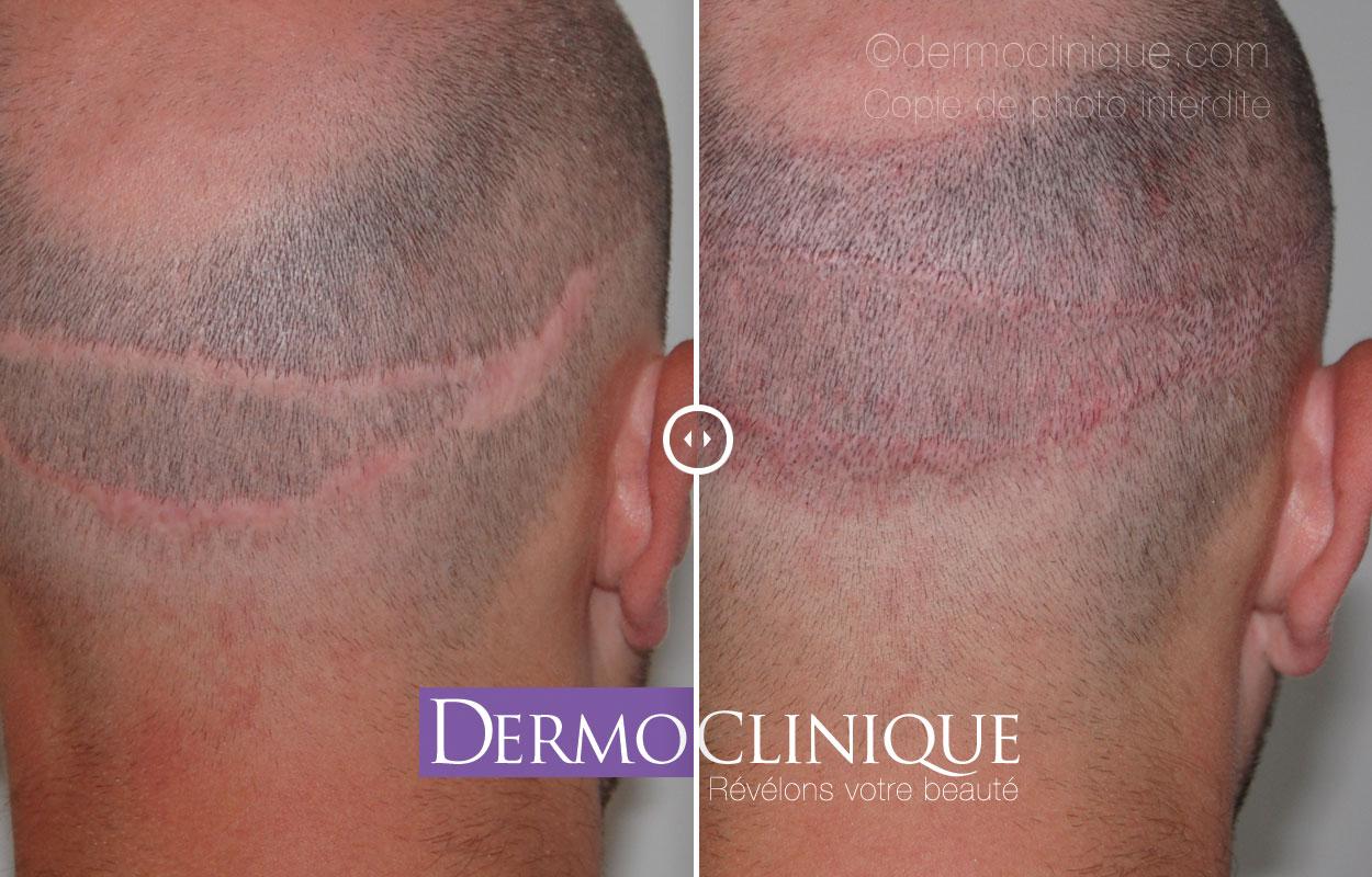 micro pigmentation de cicatrice implant