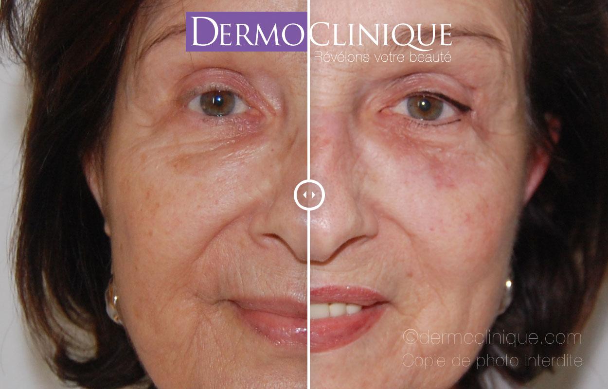 Dermopigmentation rajeunissante