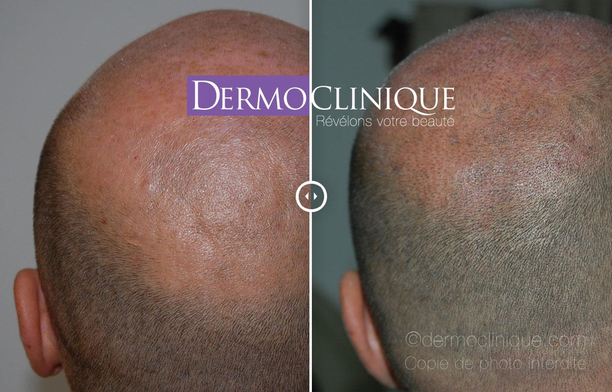 dermopigmentation de la calvitie