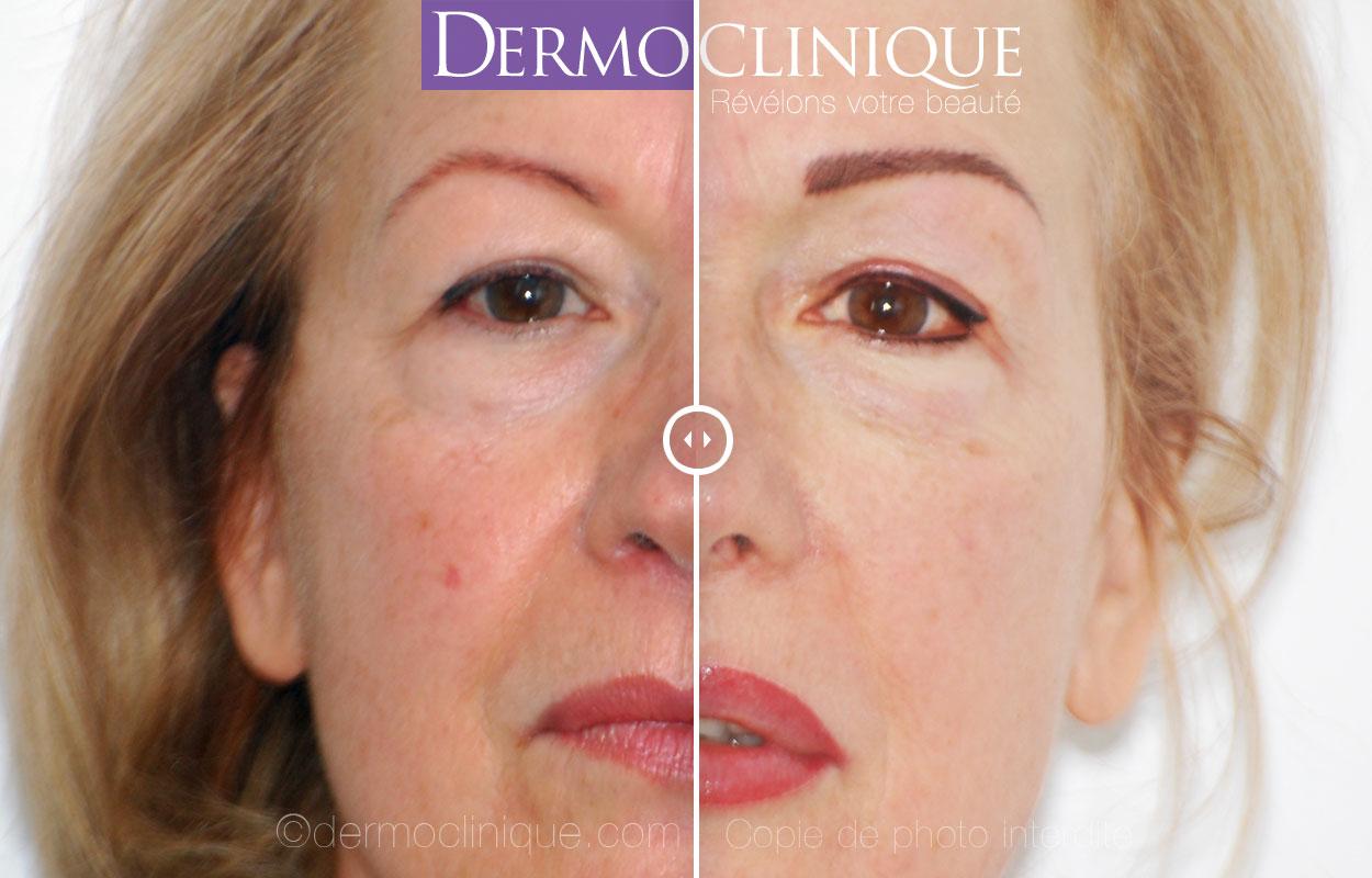 Rajeunissement facial par dermopigmentation