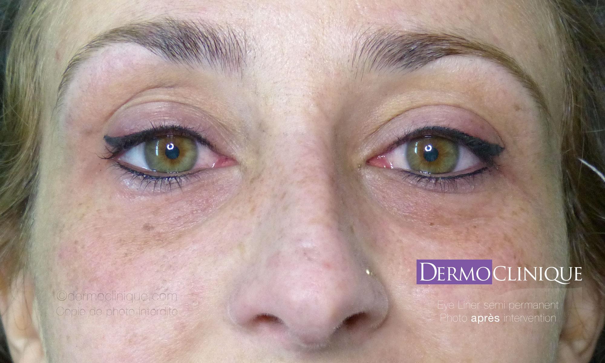 Eye liner permanent