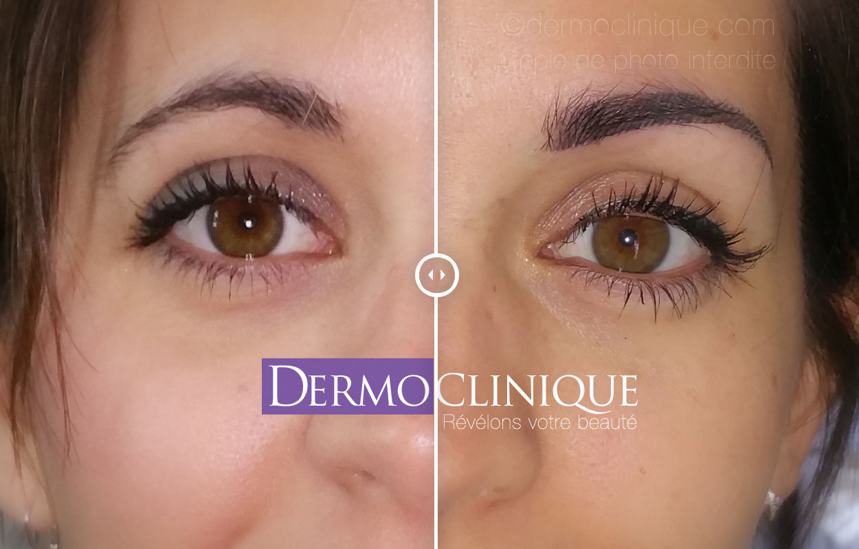 Tatouage sourcils dermoclinique - Maquillage permanent sourcil poil poil ...