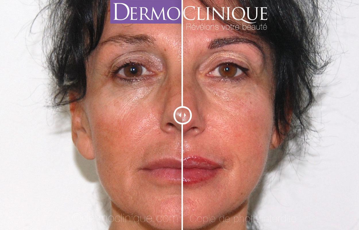 Rajeunissement par maquillage permanent