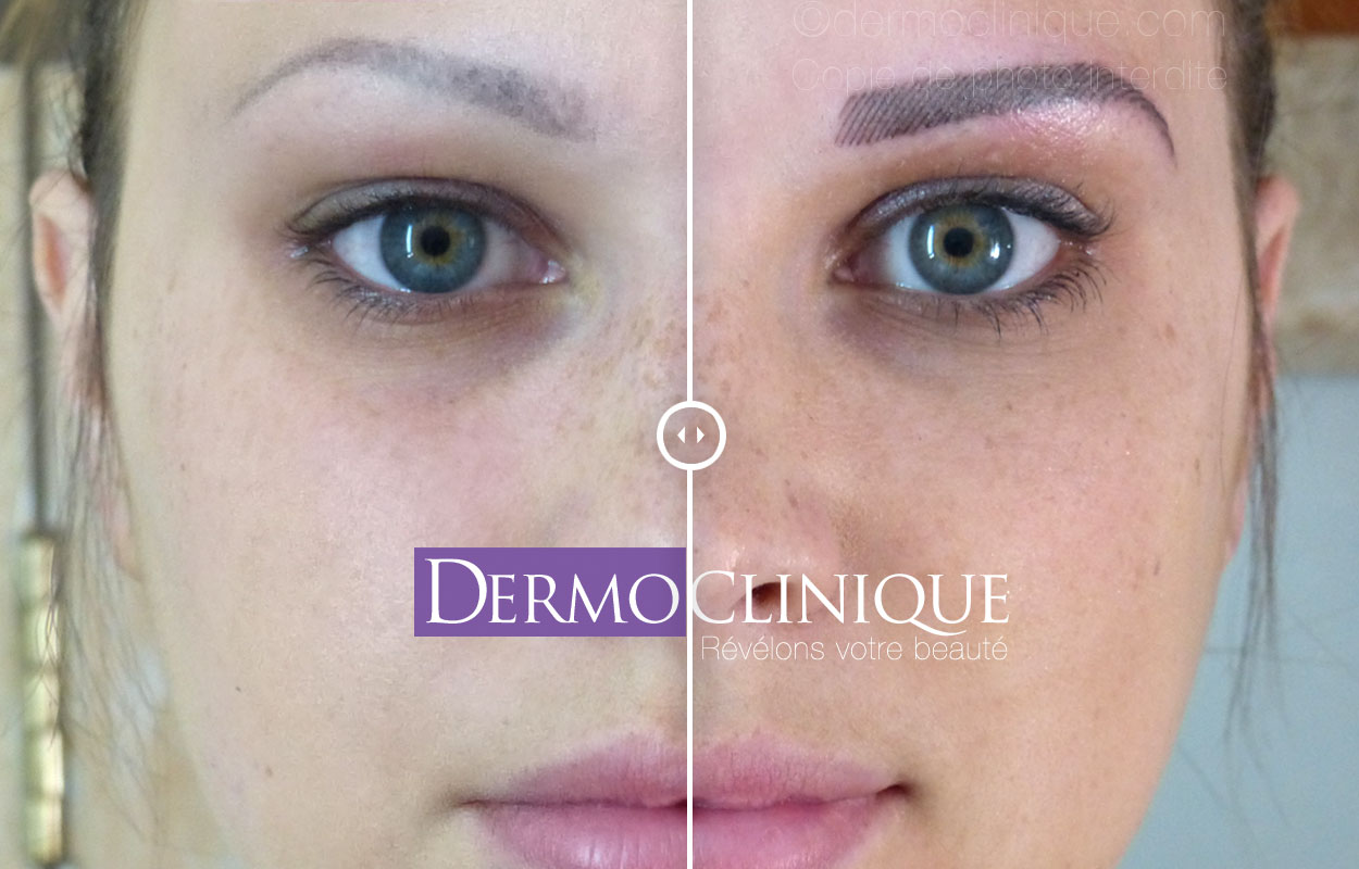 Maquillage Permanent Dermoclinique